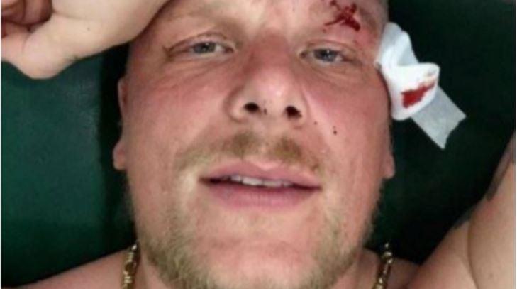 Bonez MC mit Blut im Gesicht