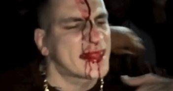 Gzuz blutet im Gesicht nach Sektglas
